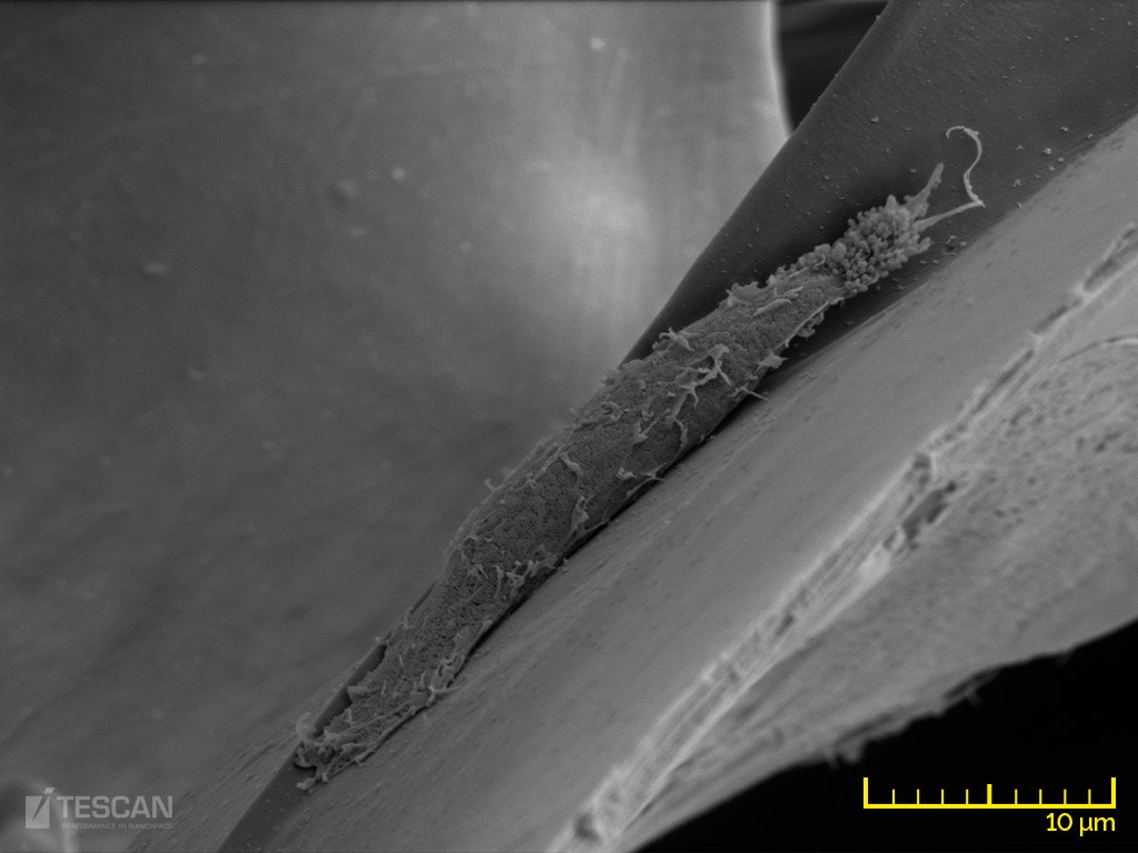 A fibroblast growing on a collagen scaffold