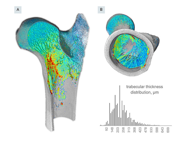 Quantitative analysis of trabecular thickness using the volume-thickness mapping method. Panels A and B show different virtual sections of the interior of the metaphysis. A histogram is shown in the inset. Note the general homogeneity of the strut thicknesses within the trabecular fabric. The centre of the thickness distribution is around 200- 260 μm, which is fairly close to the computed Tb.Th mean of 256 μm.